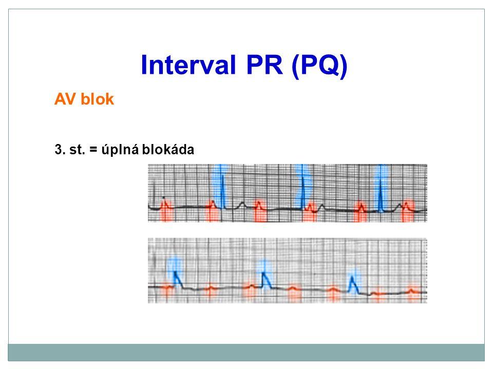 Interval PR (PQ) AV blok 3. st. = úplná blokáda