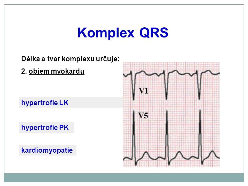 Komplex QRS Délka a tvar komplexu určuje: 2. objem myokardu kardiomyopatie hypertrofie PK hypertrofie LK