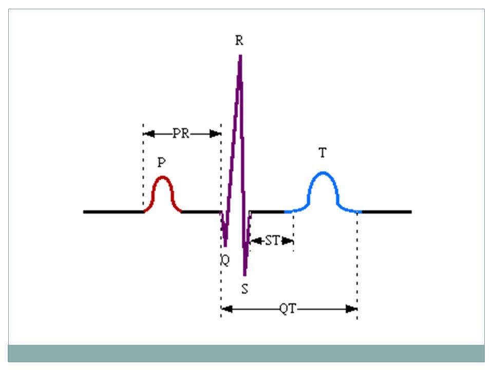Komplex QRS Depolarizace komor Fyziologie: délka 0,06 - 0,10 s Q kratší než 0,04 s a nižší než 25 % kmitu R Sokolowův index SV2 + RV5 do 35 mm (45 mm u mladých) osa depolarizace komor od -30 do +105 st.
