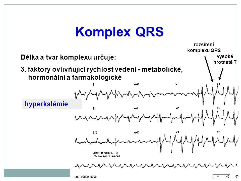 Komplex QRS Délka a tvar komplexu určuje: 3. faktory ovlivňující rychlost vedení - metabolické, hormonální a farmakologické vysoké hrotnaté T rozšířen