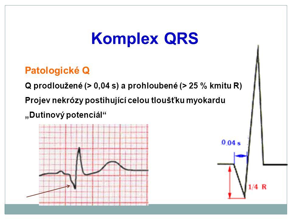 """Komplex QRS Patologické Q Q prodloužené (> 0,04 s) a prohloubené (> 25 % kmitu R) Projev nekrózy postihující celou tloušťku myokardu """"Dutinový potenci"""