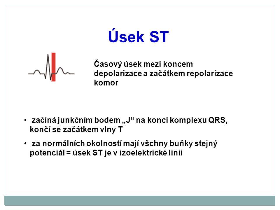 """Úsek ST začíná junkčním bodem """"J"""" na konci komplexu QRS, končí se začátkem vlny T za normálních okolností mají všchny buňky stejný potenciál = úsek ST"""