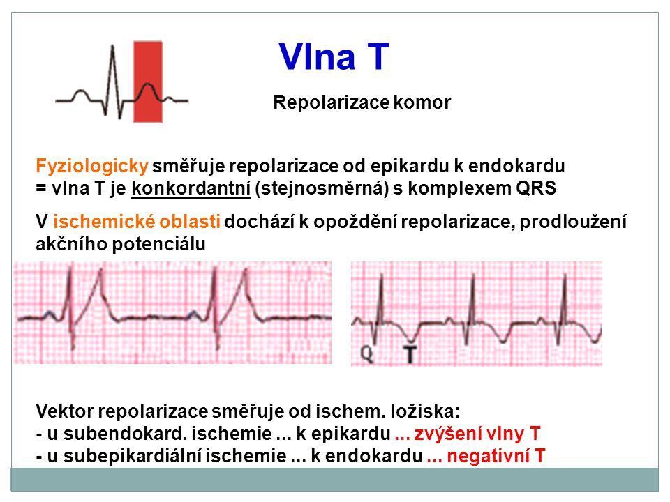 Vlna T Repolarizace komor Fyziologicky směřuje repolarizace od epikardu k endokardu = vlna T je konkordantní (stejnosměrná) s komplexem QRS V ischemic