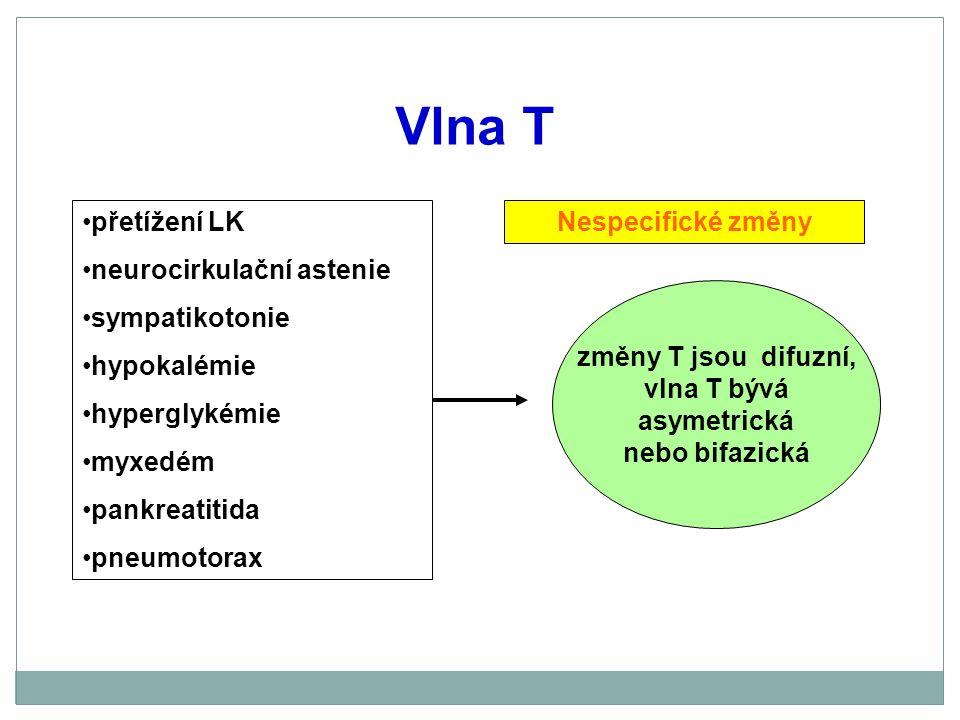 Vlna T přetížení LK neurocirkulační astenie sympatikotonie hypokalémie hyperglykémie myxedém pankreatitida pneumotorax změny T jsou difuzní, vlna T bý