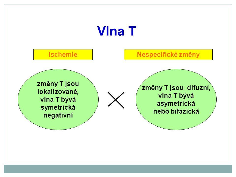 Vlna T změny T jsou difuzní, vlna T bývá asymetrická nebo bifazická změny T jsou lokalizované, vlna T bývá symetrická negativní IschemieNespecifické z