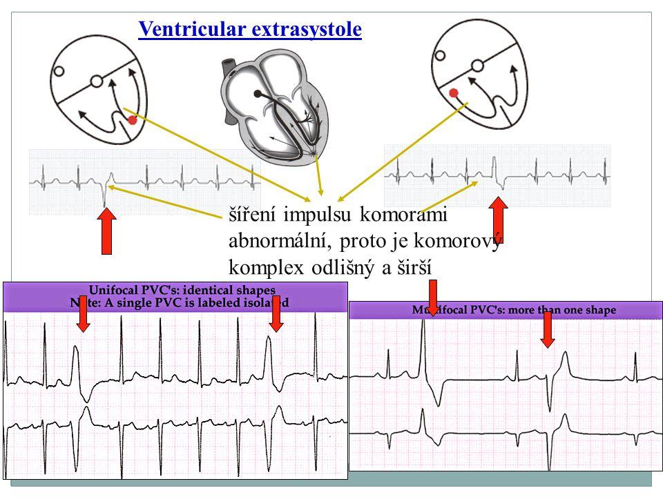Ventricular extrasystole šíření impulsu komorami abnormální, proto je komorový komplex odlišný a širší