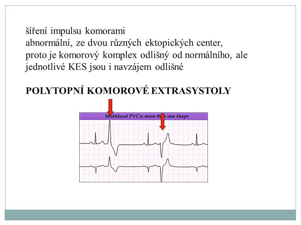 šíření impulsu komorami abnormální, ze dvou různých ektopických center, proto je komorový komplex odlišný od normálního, ale jednotlivé KES jsou i nav