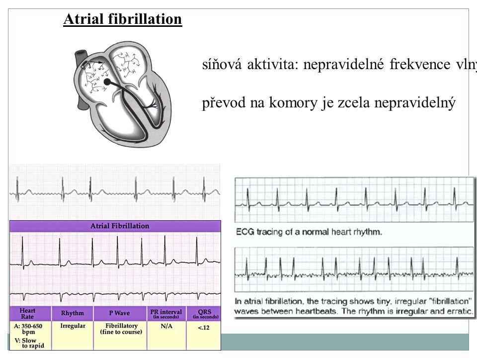 Atrial fibrillation síňová aktivita: nepravidelné frekvence vlny převod na komory je zcela nepravidelný