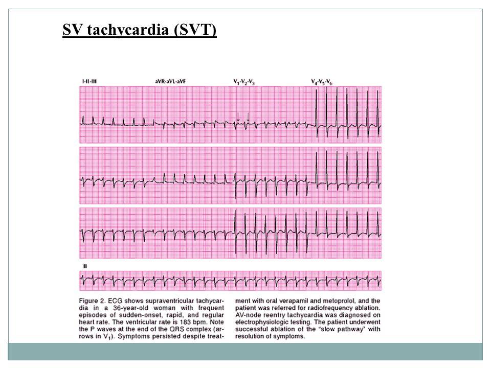 SV tachycardia (SVT)