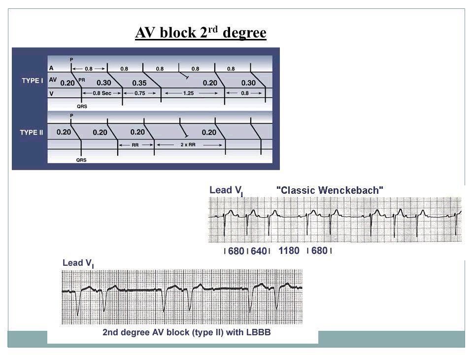 AV block 2 rd degree