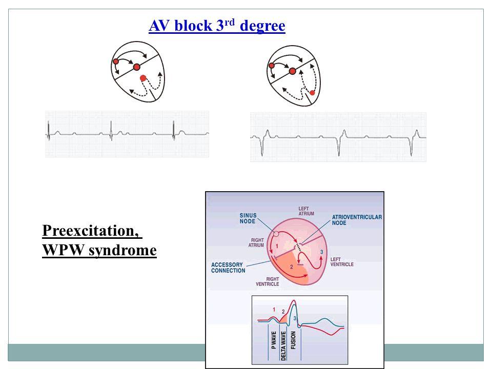AV block 3 rd degree Preexcitation, WPW syndrome