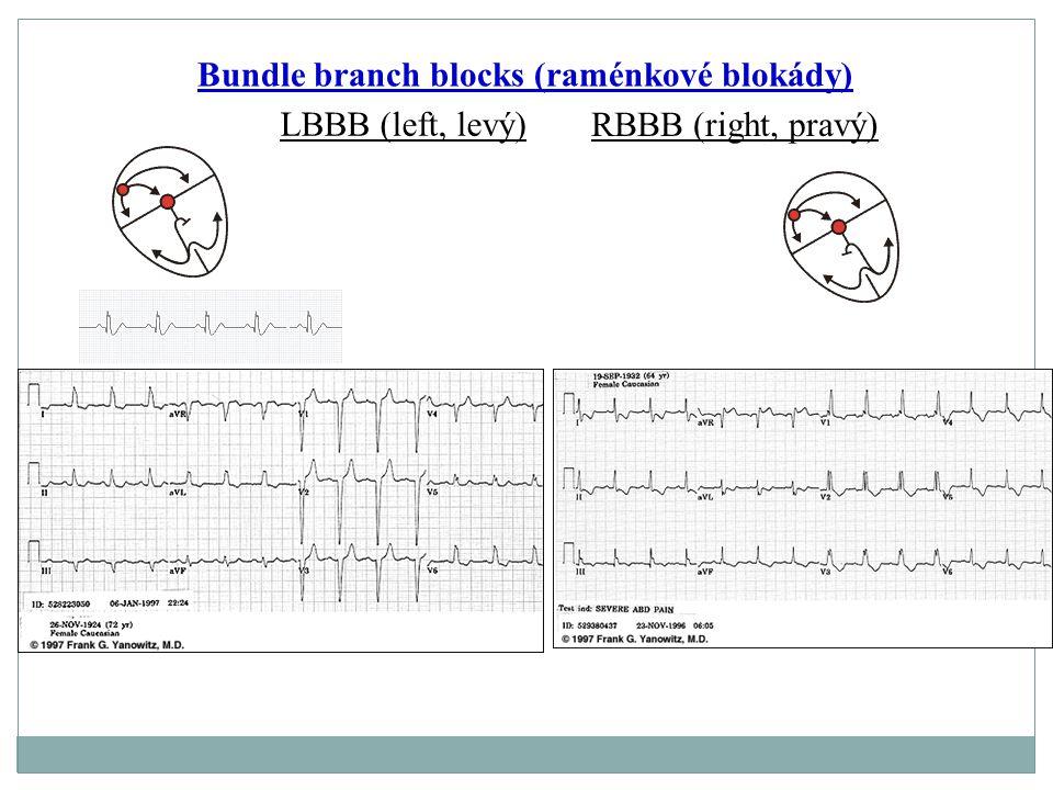Bundle branch blocks (raménkové blokády) LBBB (left, levý) RBBB (right, pravý)