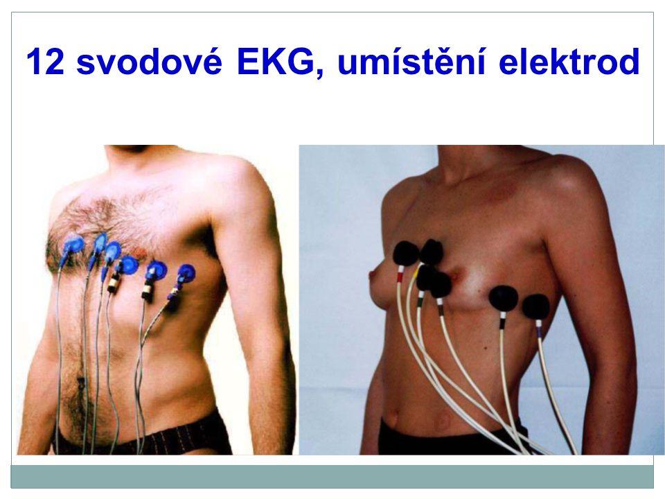 Komplex QRS Délka a tvar komplexu určuje: 1.fyziologie Hisova-Purkyňova systému, event.
