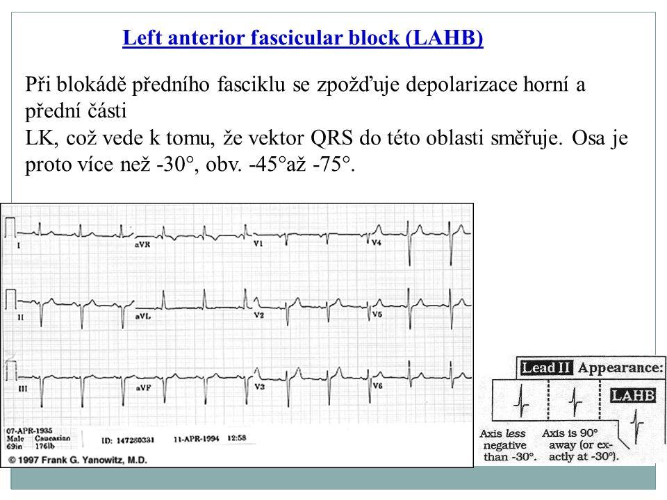 Left anterior fascicular block (LAHB) Při blokádě předního fasciklu se zpožďuje depolarizace horní a přední části LK, což vede k tomu, že vektor QRS d