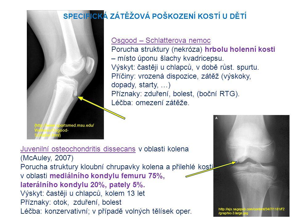 Osgood – Schlatterova nemoc Porucha struktury (nekróza) hrbolu holenní kosti – místo úponu šlachy kvadricepsu. Výskyt: častěji u chlapců, v době růst.