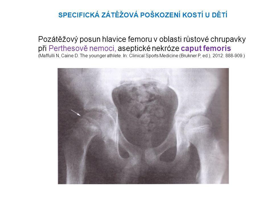 Pozátěžový posun hlavice femoru v oblasti růstové chrupavky při Perthesově nemoci, aseptické nekróze caput femoris (Maffulli N, Caine D.