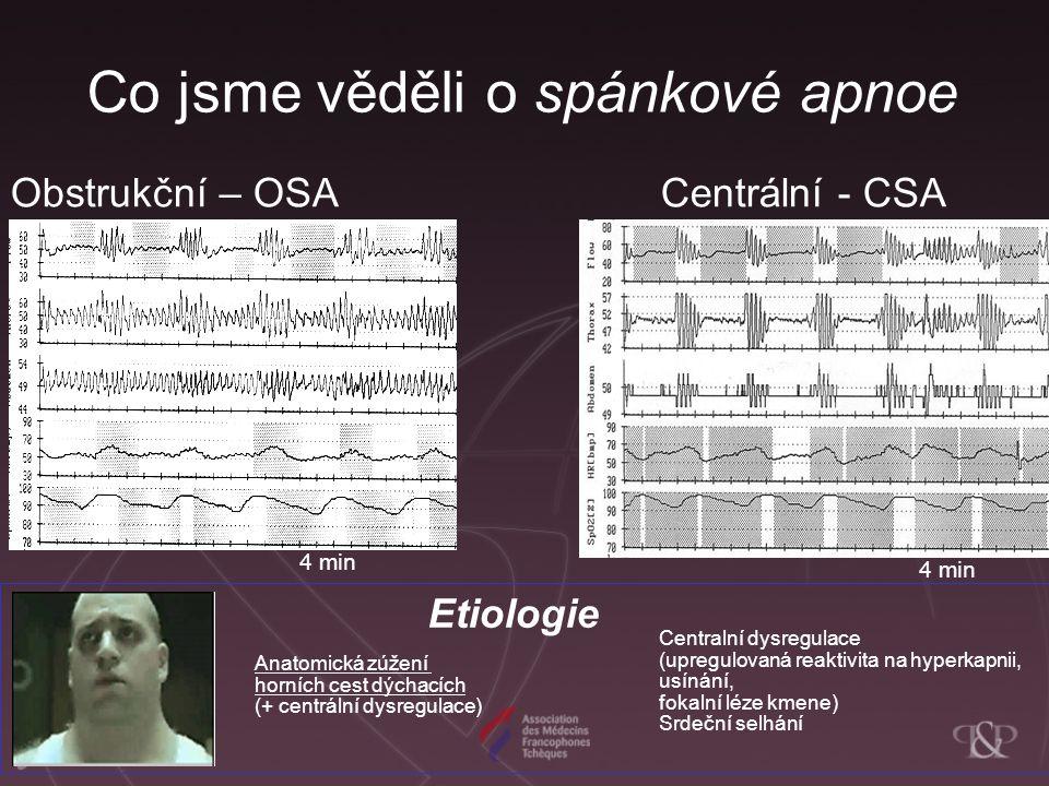Co jsme věděli o spánkové apnoe Obstrukční – OSA Centrální - CSA Etiologie Anatomická zúžení horních cest dýchacích (+ centrální dysregulace) Centralní dysregulace (upregulovaná reaktivita na hyperkapnii, usínání, fokalní léze kmene) Srdeční selhání 4 min
