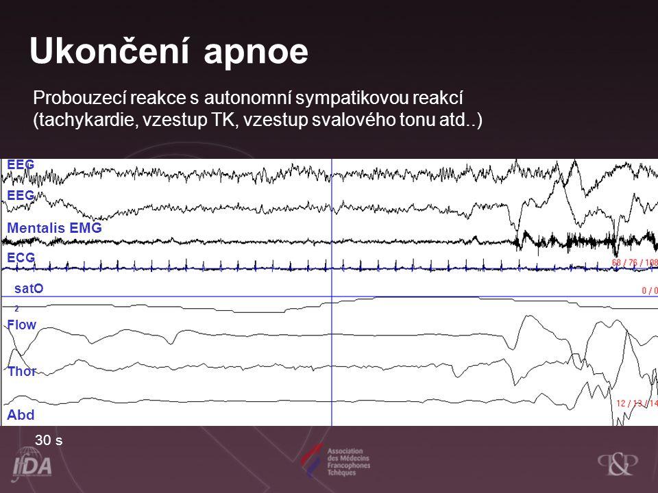 EEG Mentalis EMG ECG satO 2 Flow Thor Abd Ukončení apnoe Probouzecí reakce s autonomní sympatikovou reakcí (tachykardie, vzestup TK, vzestup svalového