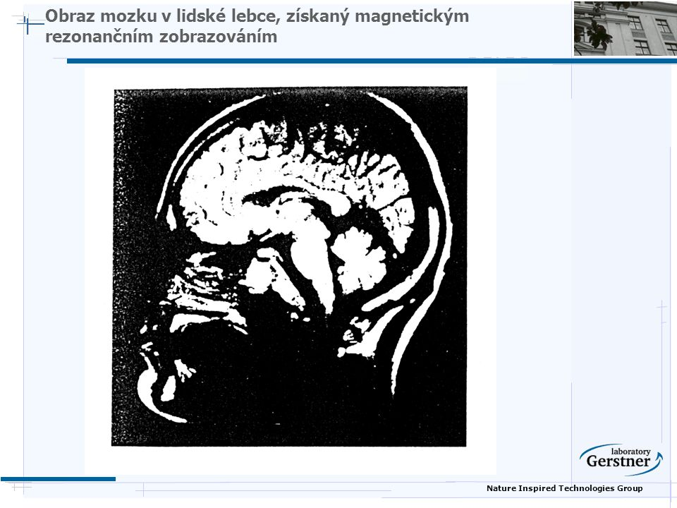 Nature Inspired Technologies Group Obraz mozku v lidské lebce, získaný magnetickým rezonančním zobrazováním