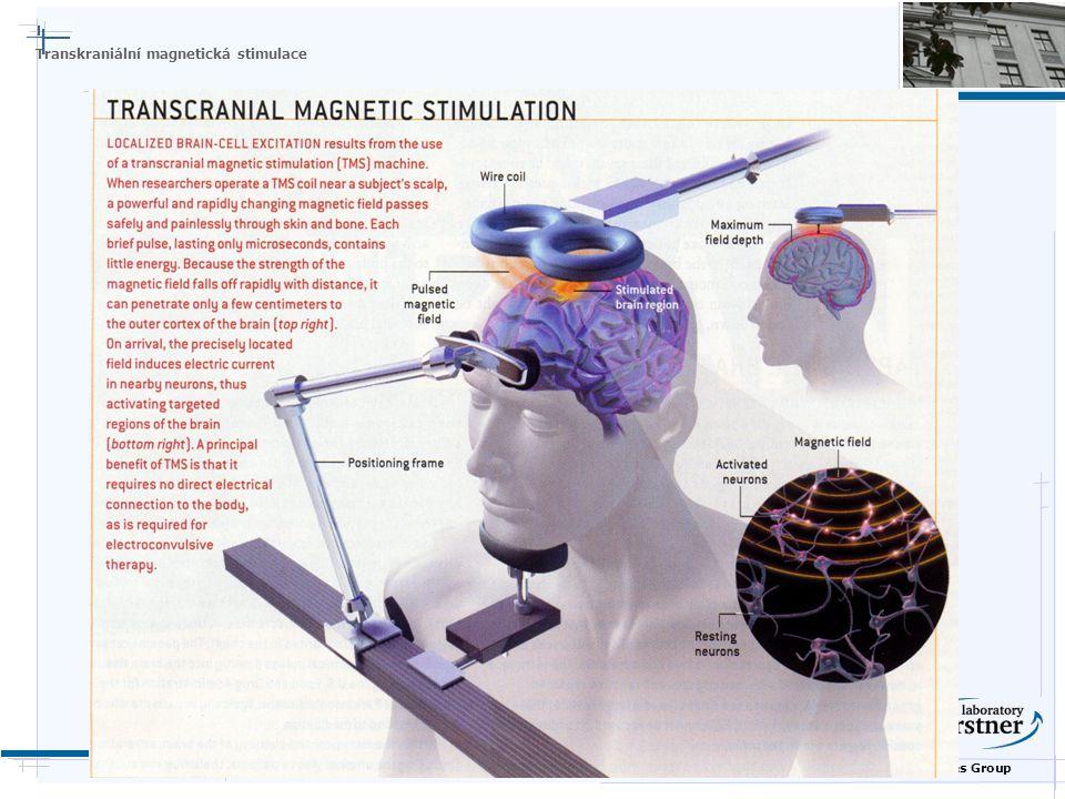 Nature Inspired Technologies Group Transkraniální magnetická stimulace