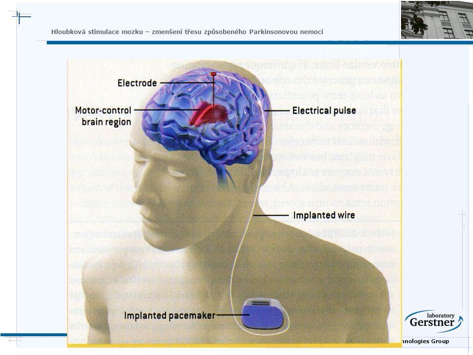 Nature Inspired Technologies Group Hloubková stimulace mozku – zmenšení třesu způsobeného Parkinsonovou nemocí