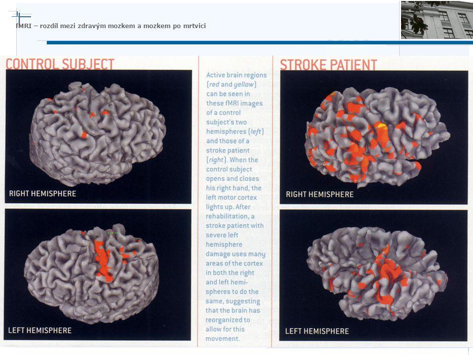 Nature Inspired Technologies Group fMRI – rozdíl mezi zdravým mozkem a mozkem po mrtvici