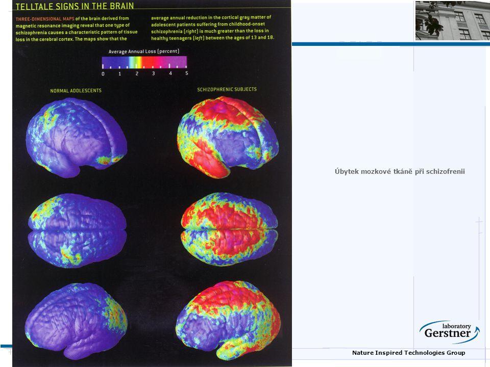 Úbytek mozkové tkáně při schizofrenii