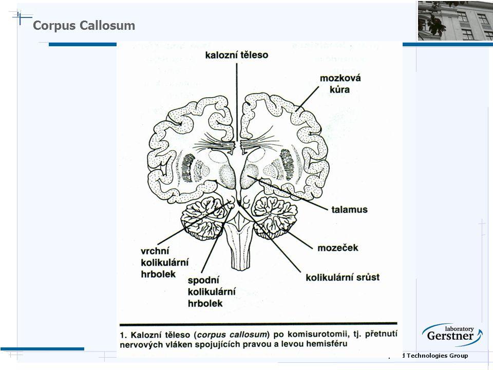 Nature Inspired Technologies Group Corpus Callosum