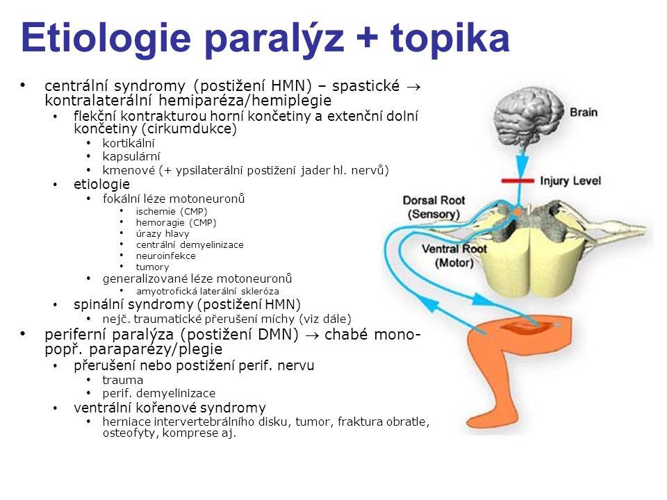 Etiologie paralýz + topika centrální syndromy (postižení HMN) – spastické  kontralaterální hemiparéza/hemiplegie flekční kontrakturou horní končetiny a extenční dolní končetiny (cirkumdukce) kortikální kapsulární kmenové (+ ypsilaterální postižení jader hl.