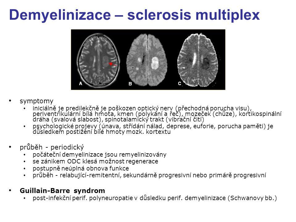 Demyelinizace – sclerosis multiplex symptomy iniciálně je predilekčně je poškozen optický nerv (přechodná porucha visu), periventrikulární bílá hmota, kmen (polykání a řeč), mozeček (chůze), kortikospinální dráha (svalová slabost), spinotalamický trakt (vibrační čití) psychologické projevy (únava, střídání nálad, deprese, euforie, porucha paměti) je důsledkem postižení bílé hmoty mozk.