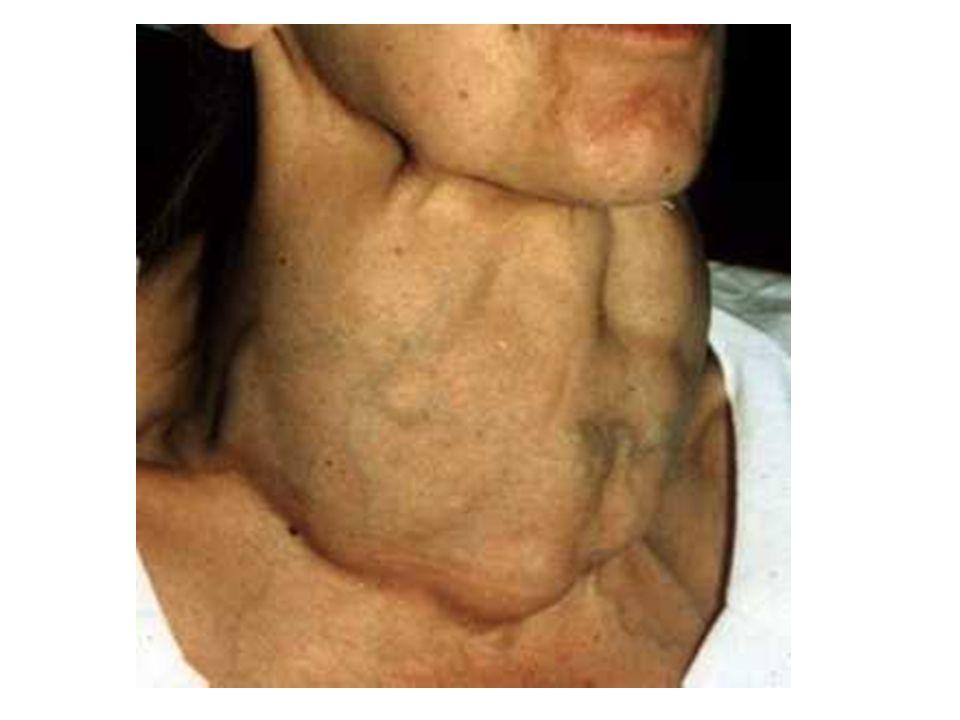 Léčba eufunkční strumy 1.tyroxin- zlepší zásobení organismu hormony št.
