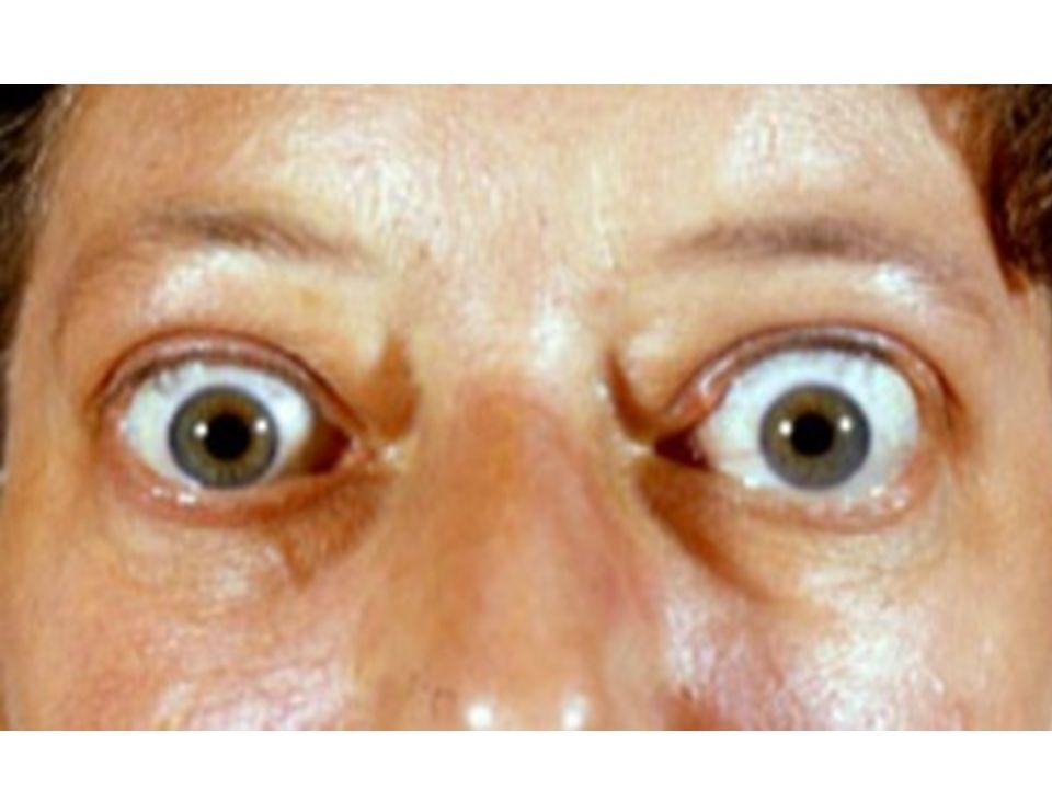 NÁDORY ŠT.ŽLÁZY 1.folikulární- dobrá prognoza, u starších horší 2.