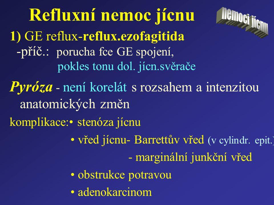 Refluxní nemoc jícnu 1) GE reflux-reflux.ezofagitida -příč.: porucha fce GE spojení, pokles tonu dol. jícn.svěrače Pyróza - není korelát s rozsahem a