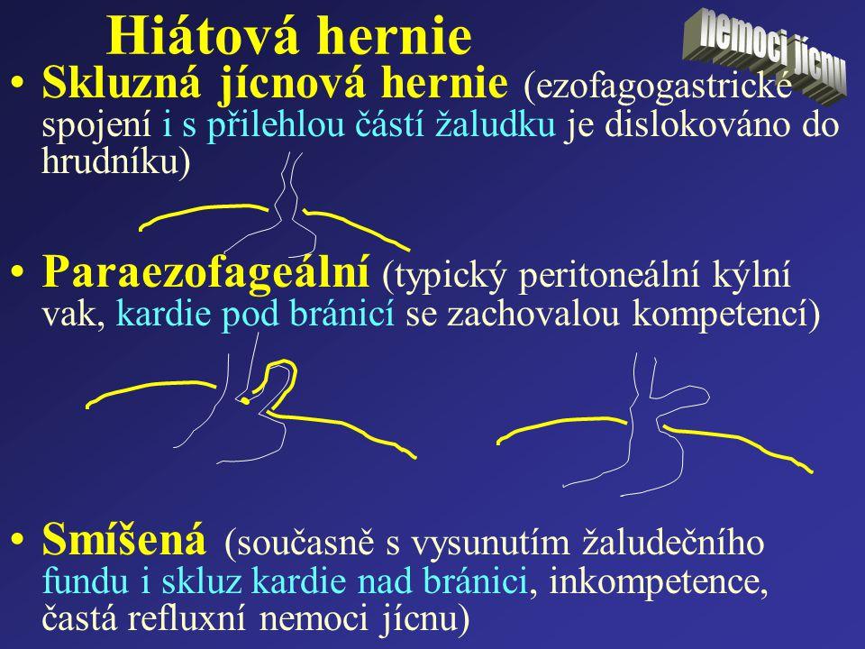 Hiátová hernie Skluzná jícnová hernie (ezofagogastrické spojení i s přilehlou částí žaludku je dislokováno do hrudníku) Paraezofageální (typický perit