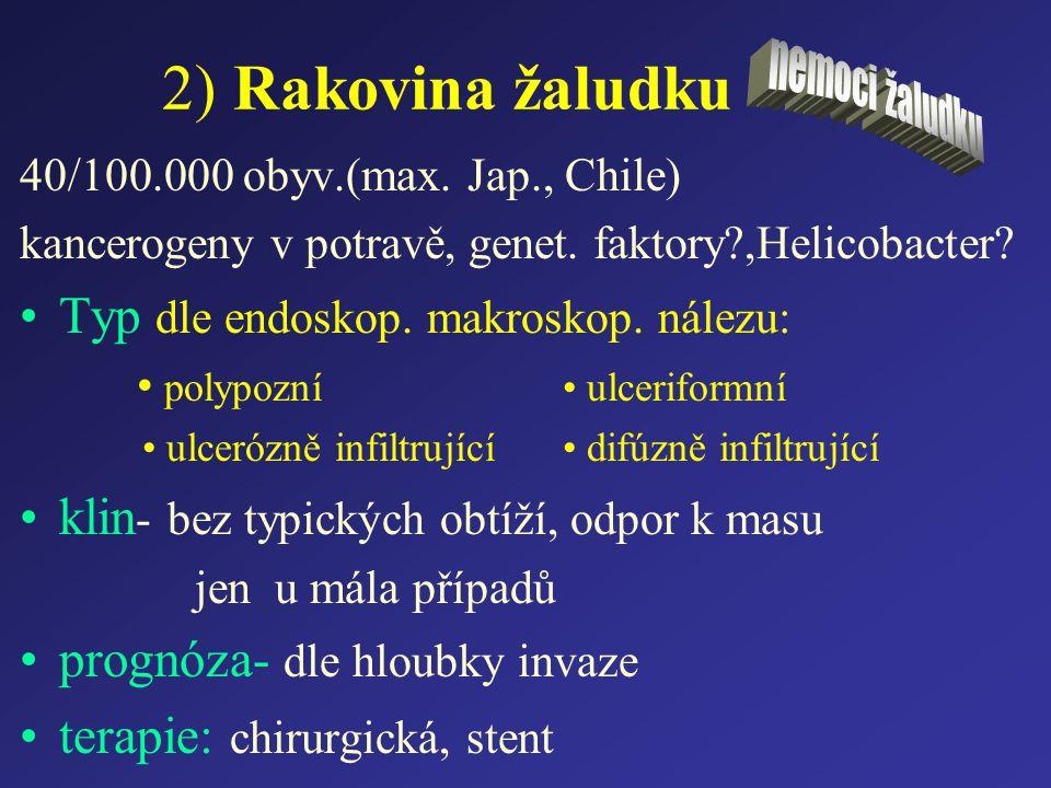 2) Rakovina žaludku 40/100.000 obyv.(max. Jap., Chile) kancerogeny v potravě, genet. faktory?,Helicobacter? Typ dle endoskop. makroskop. nálezu: polyp