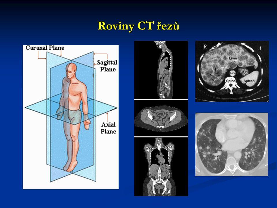 Roviny CT řezů
