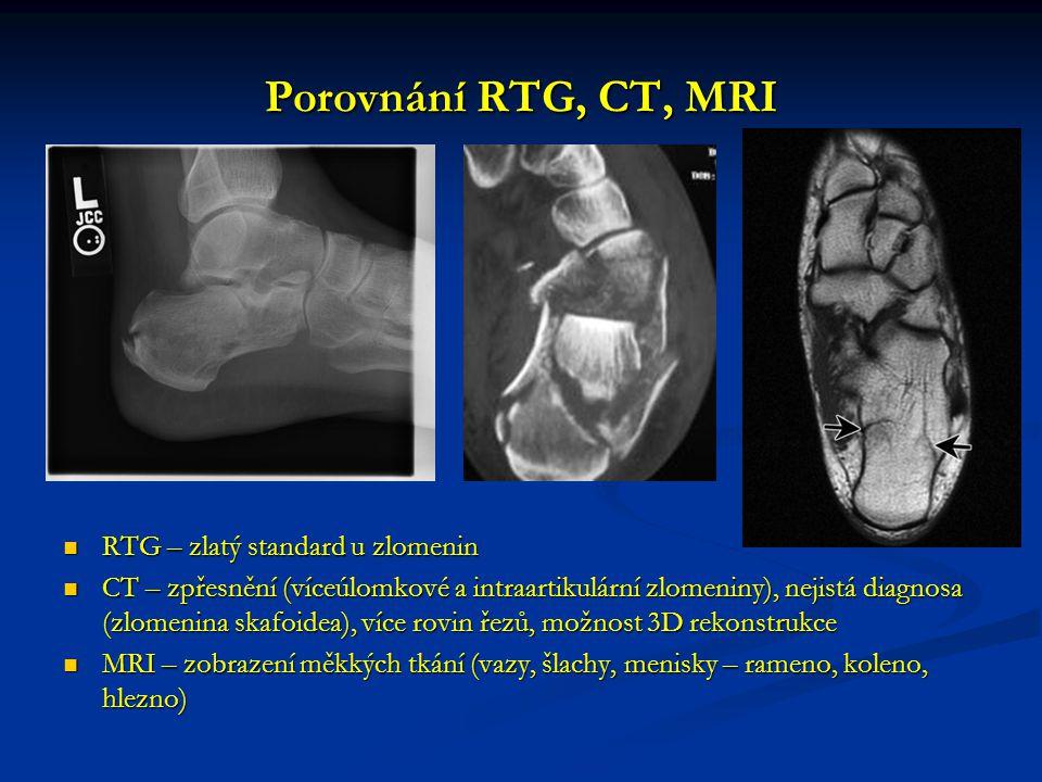 Porovnání RTG, CT, MRI RTG – zlatý standard u zlomenin RTG – zlatý standard u zlomenin CT – zpřesnění (víceúlomkové a intraartikulární zlomeniny), nejistá diagnosa (zlomenina skafoidea), více rovin řezů, možnost 3D rekonstrukce CT – zpřesnění (víceúlomkové a intraartikulární zlomeniny), nejistá diagnosa (zlomenina skafoidea), více rovin řezů, možnost 3D rekonstrukce MRI – zobrazení měkkých tkání (vazy, šlachy, menisky – rameno, koleno, hlezno) MRI – zobrazení měkkých tkání (vazy, šlachy, menisky – rameno, koleno, hlezno)
