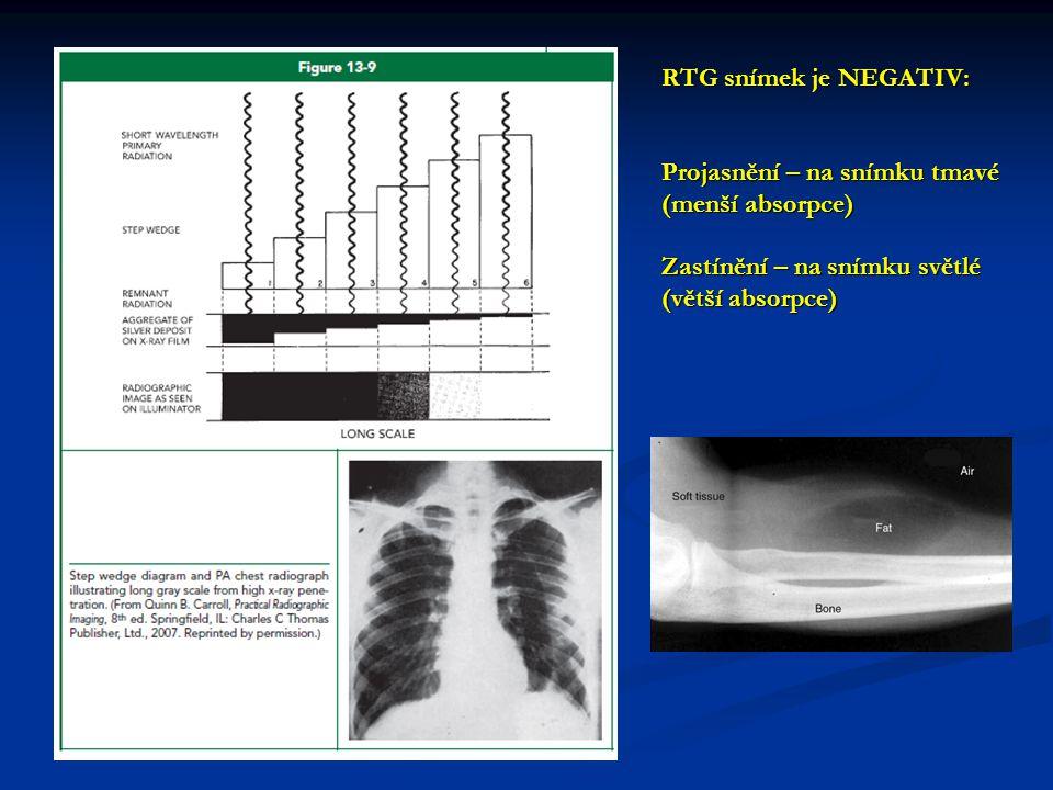RTG snímek je NEGATIV: Projasnění – na snímku tmavé (menší absorpce) Zastínění – na snímku světlé (větší absorpce)