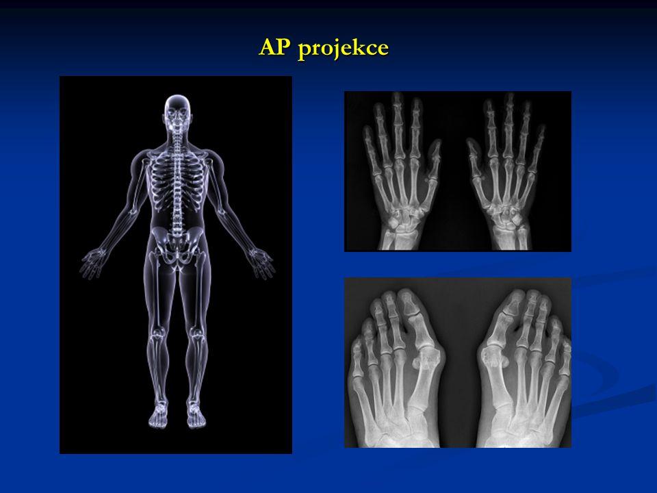 Zásady RTG snímkování RTG je dvourozměrným zobrazením trojrozměrných anatomických struktur RTG je dvourozměrným zobrazením trojrozměrných anatomických struktur vždy nejméně 2 projekce na sebe kolmé (AP + LAT) vždy nejméně 2 projekce na sebe kolmé (AP + LAT) držené snímky, srovnávací snímky držené snímky, srovnávací snímky