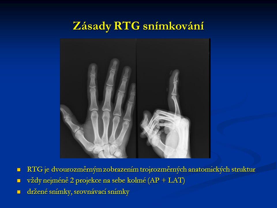 Zásady RTG snímkování RTG je dvourozměrným zobrazením trojrozměrných anatomických struktur RTG je dvourozměrným zobrazením trojrozměrných anatomických