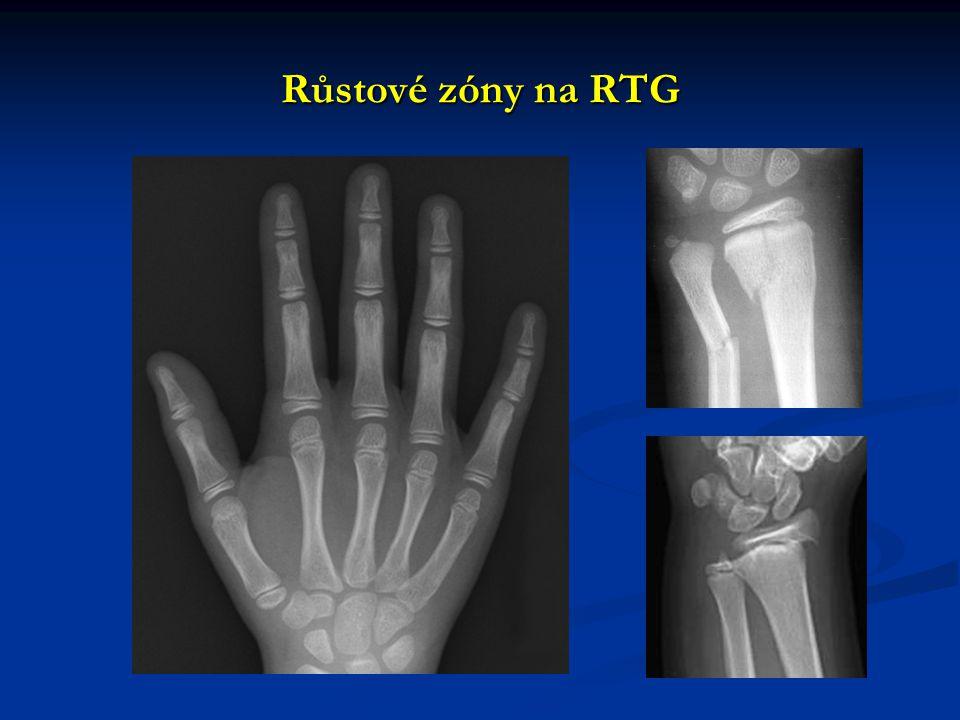 RTG snímkování RTG (klasický – plain x-ray, plain radiograph) RTG (klasický – plain x-ray, plain radiograph) nativ (native) nativ (native) s kontrastní látkou (contrast) s kontrastní látkou (contrast) dle polohy pacienta dle polohy pacienta vstoje (upright, erect) vstoje (upright, erect) vleže (decubitus, lateral decubitus, supine, prone) vleže (decubitus, lateral decubitus, supine, prone)