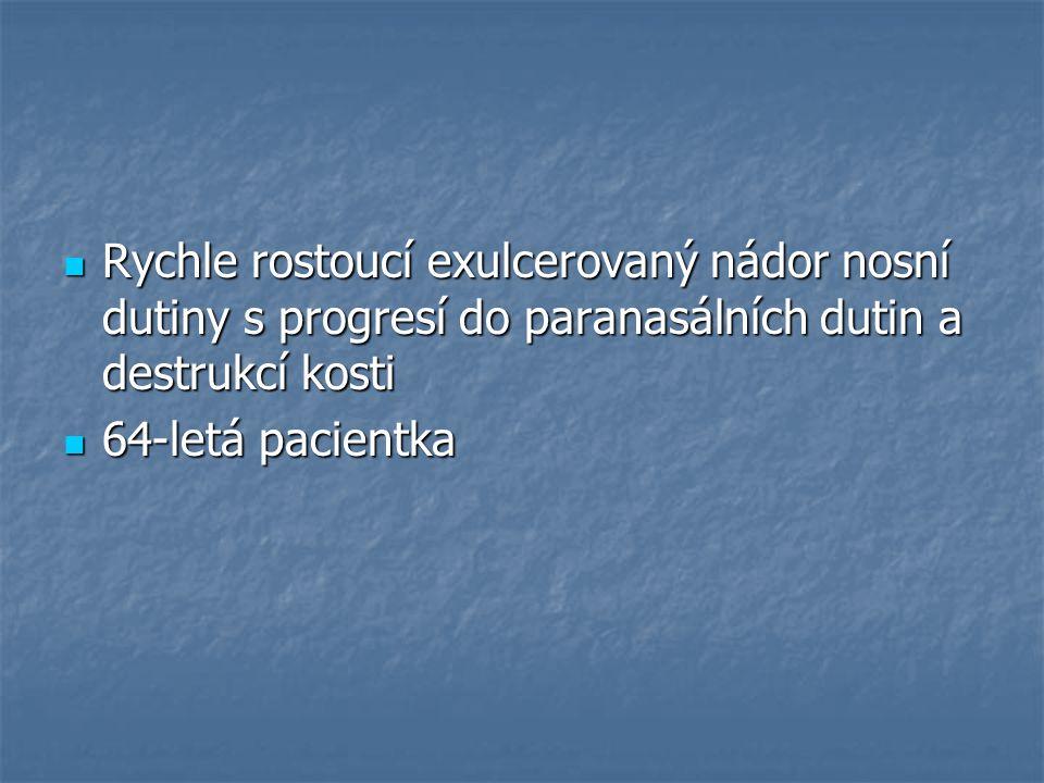 HG adenokarcinom nosní sliznice NOS