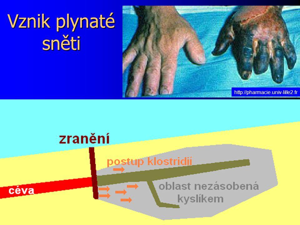 Vznik plynaté sněti http://pharmacie.univ-lille2.fr