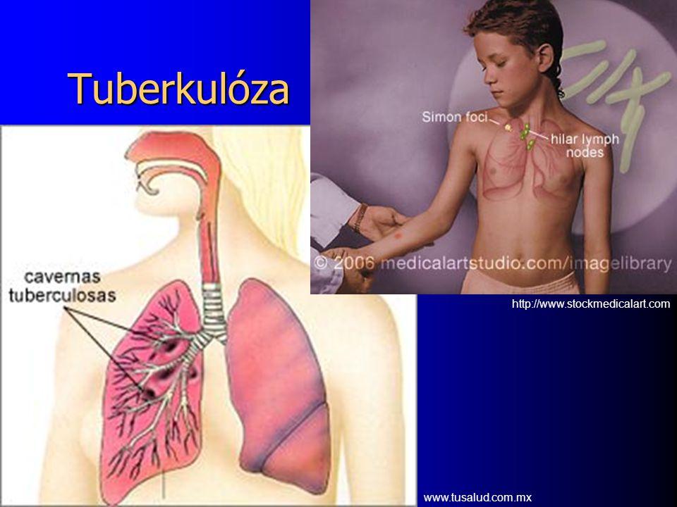 Tuberkulóza www.tusalud.com.mx http://www.stockmedicalart.com
