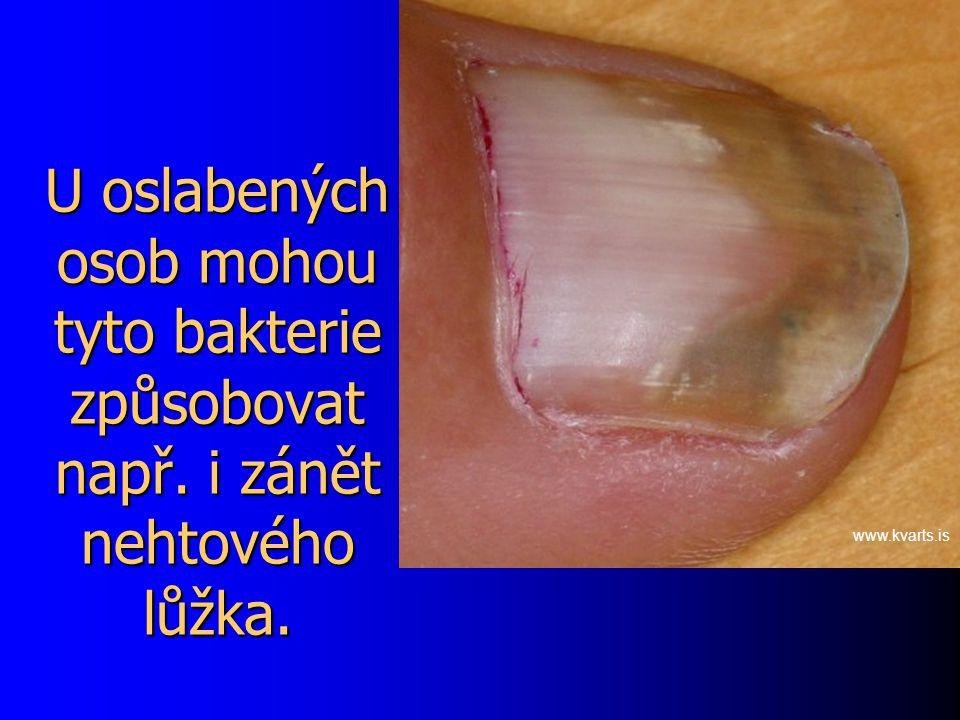 U oslabených osob mohou tyto bakterie způsobovat např. i zánět nehtového lůžka. www.kvarts.is