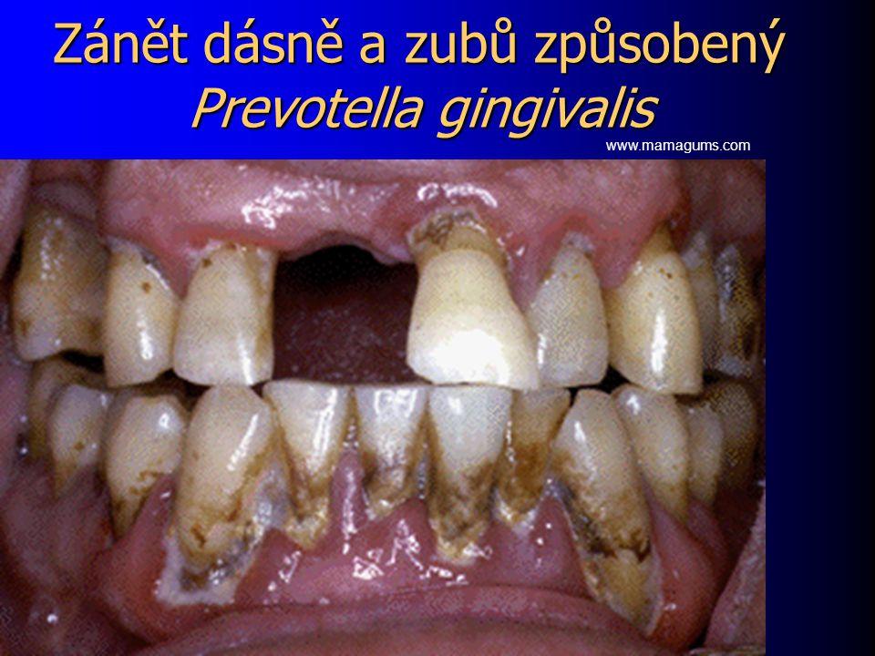 Zánět dásně a zubů způsobený Prevotella gingivalis www.mamagums.com