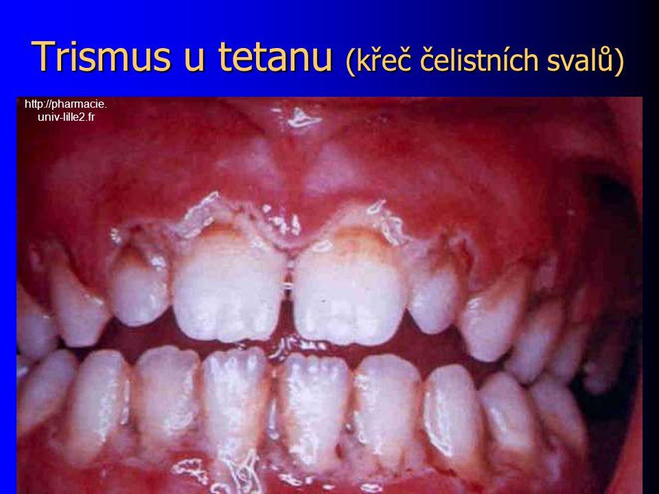 Trismus u tetanu (křeč čelistních svalů) http://pharmacie. univ-lille2.fr