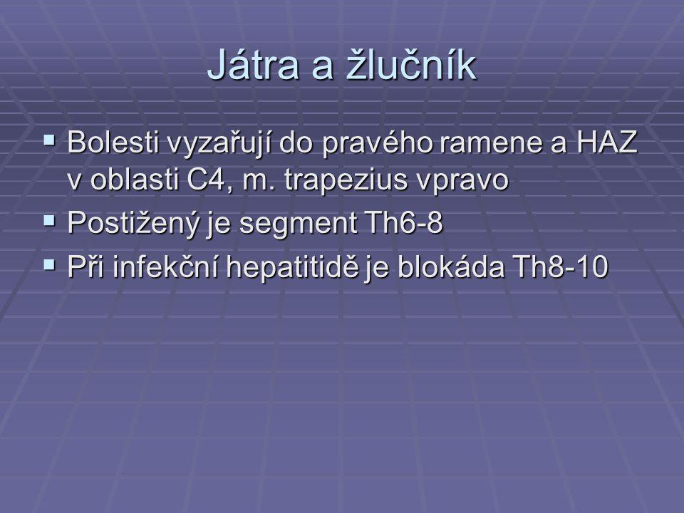 Játra a žlučník  Bolesti vyzařují do pravého ramene a HAZ v oblasti C4, m. trapezius vpravo  Postižený je segment Th6-8  Při infekční hepatitidě je