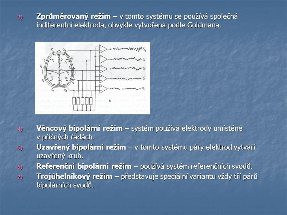 3) Zprůměrovaný režim – v tomto systému se používá společná indiferentní elektroda, obvykle vytvořená podle Goldmana. 4) Věncový bipolární režim – sys