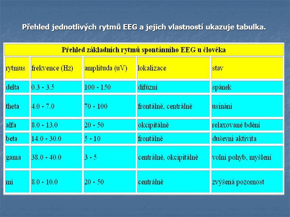 Přehled jednotlivých rytmů EEG a jejich vlastností ukazuje tabulka. Přehled jednotlivých rytmů EEG a jejich vlastností ukazuje tabulka.